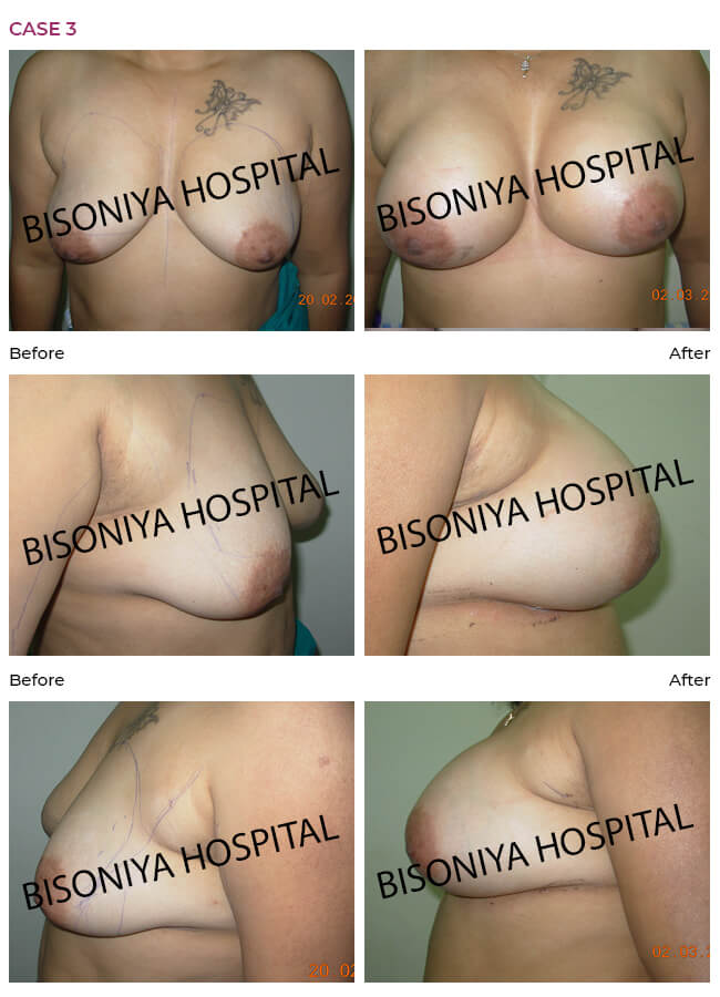 Breast Enlargement - Case3