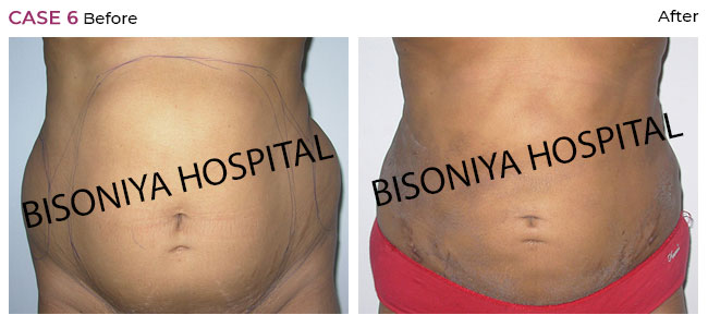 Liposuction - Case1