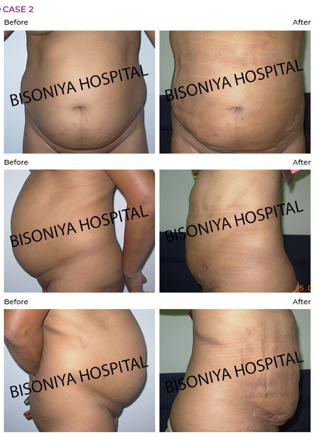 Liposuction - Case4