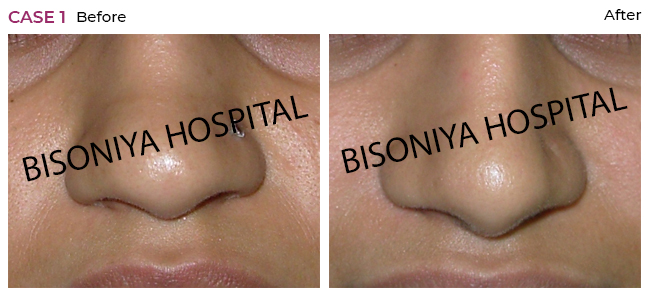 Rhinoplasty - Case1