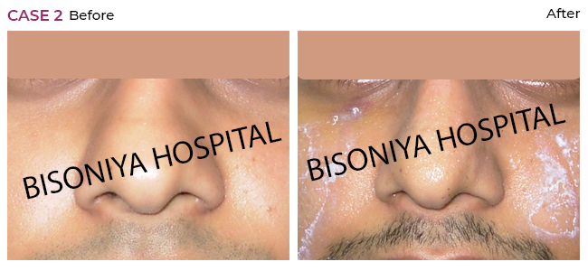 Rhinoplasty - Case2