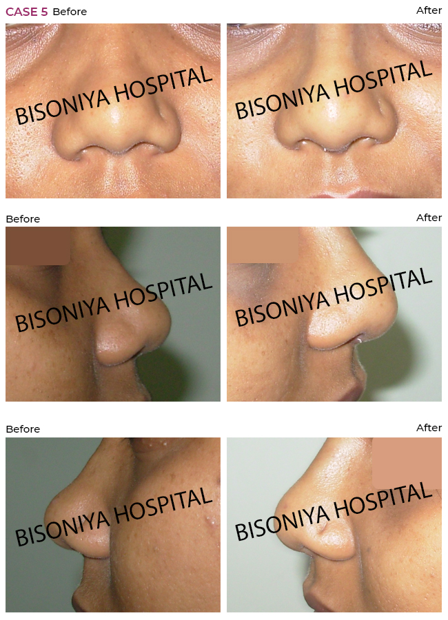Rhinoplasty - Case5