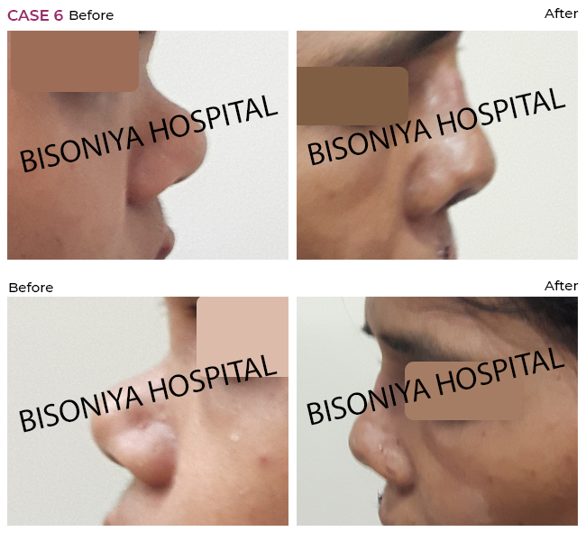 Rhinoplasty - Case6