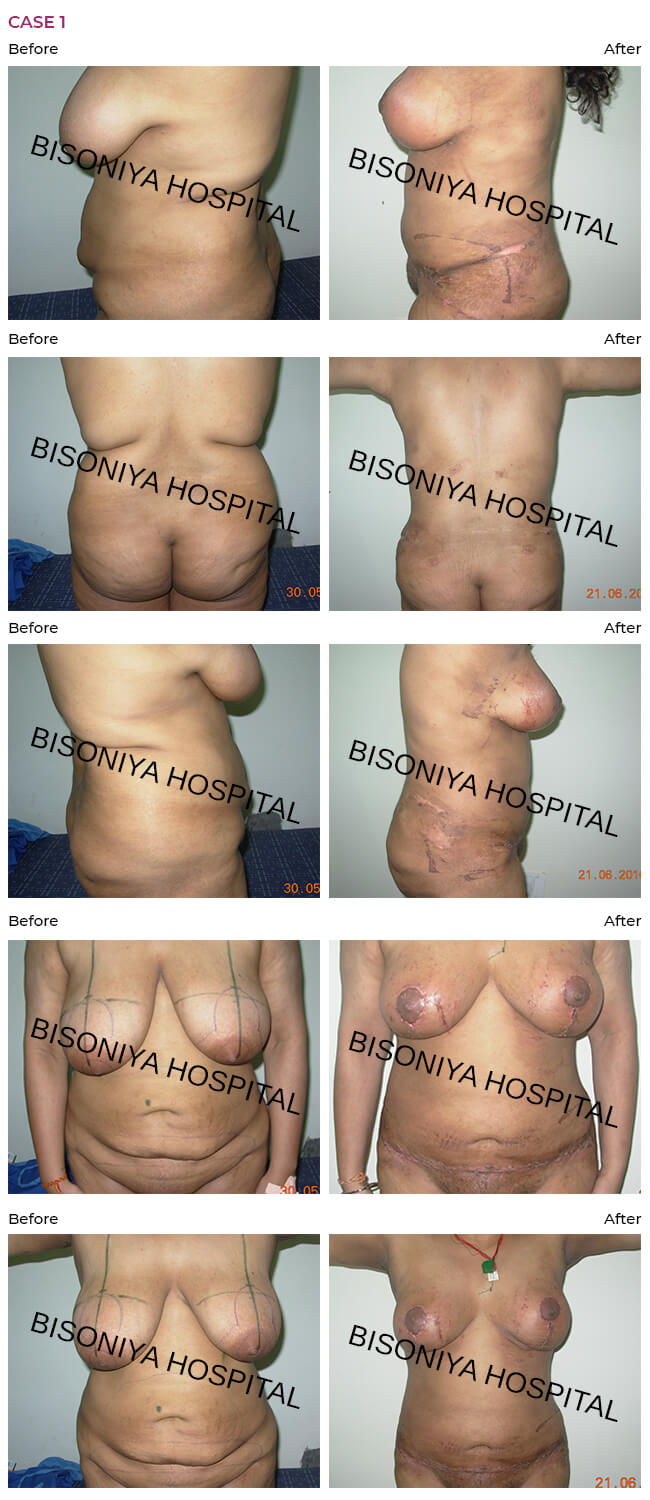 Abdominoplasty - Case1