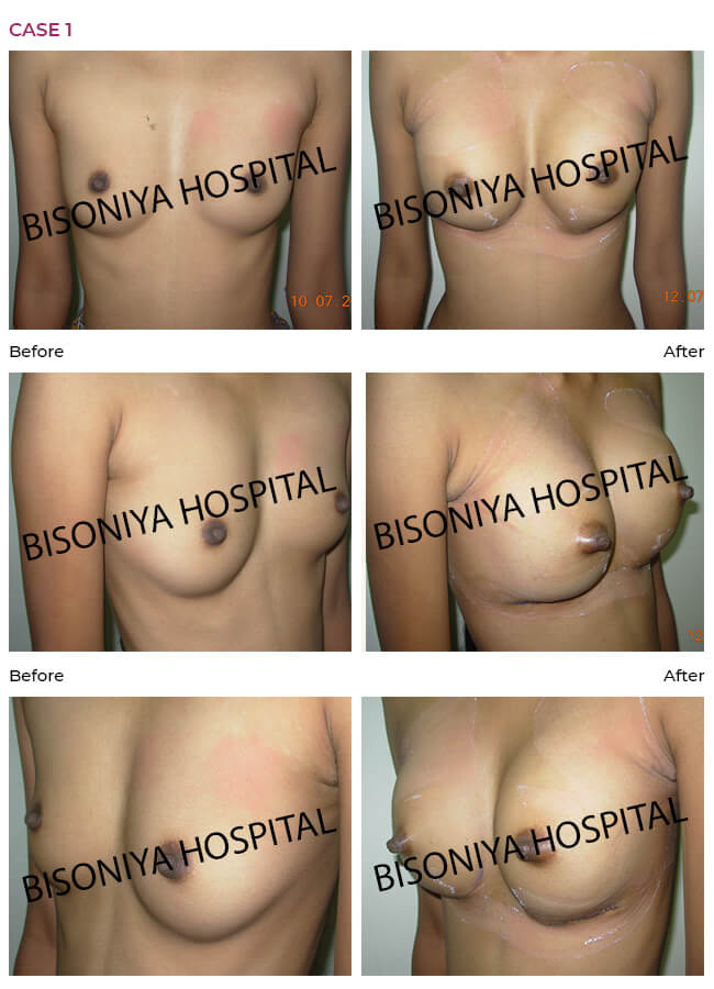 Breast Enlargement - Case1