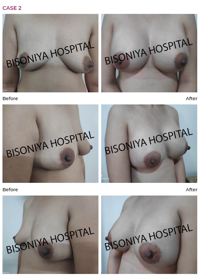 Breast Enlargement - Case2