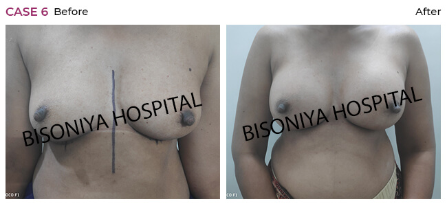 Breast Enlargement - Case6