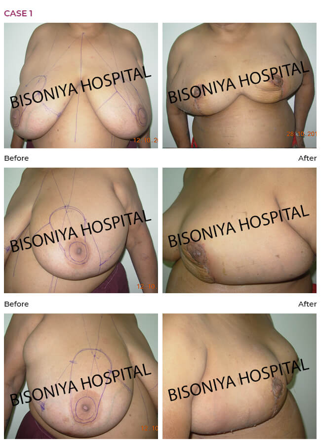 Breast Reduction - Case1