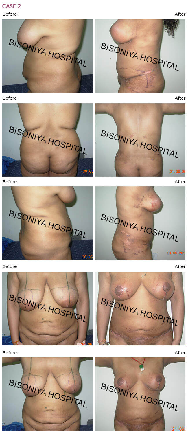Breast Reduction Case2