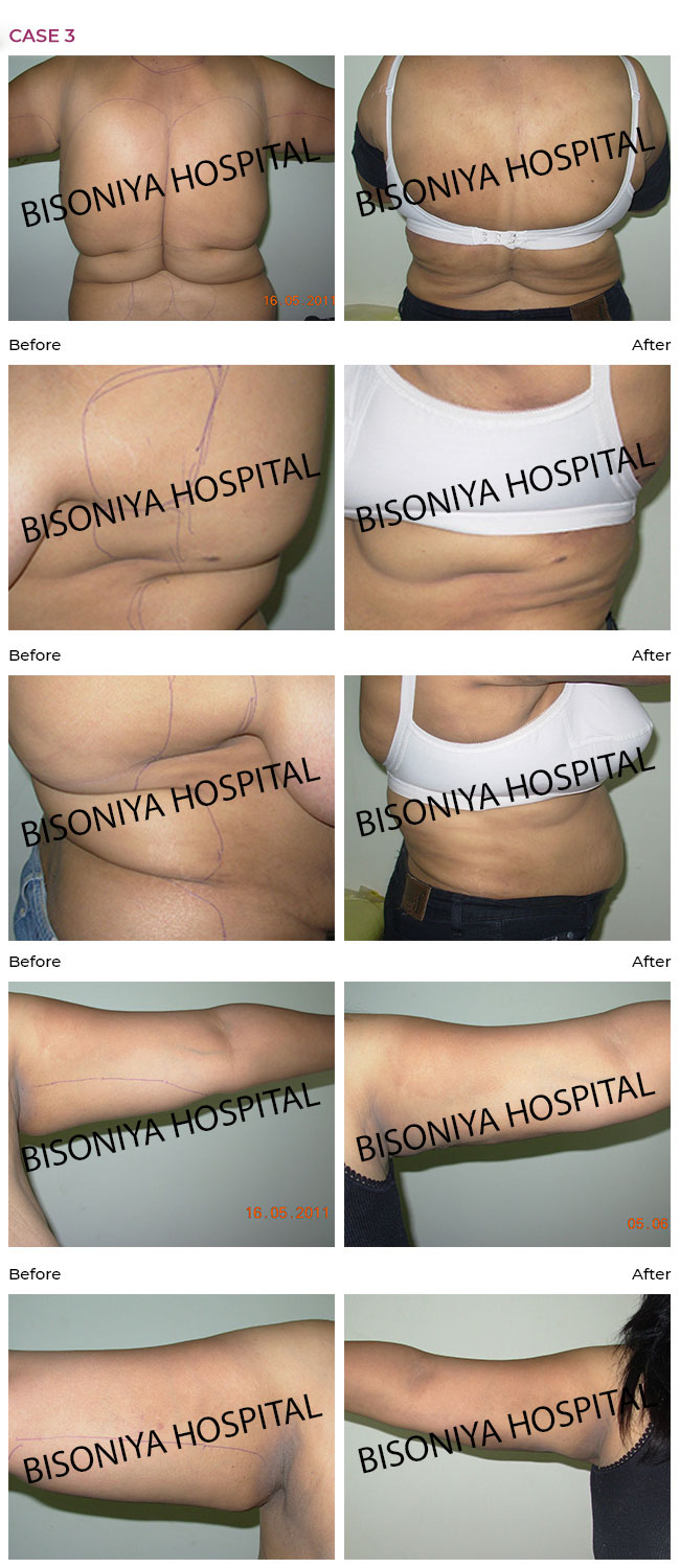 Liposuction - Case5