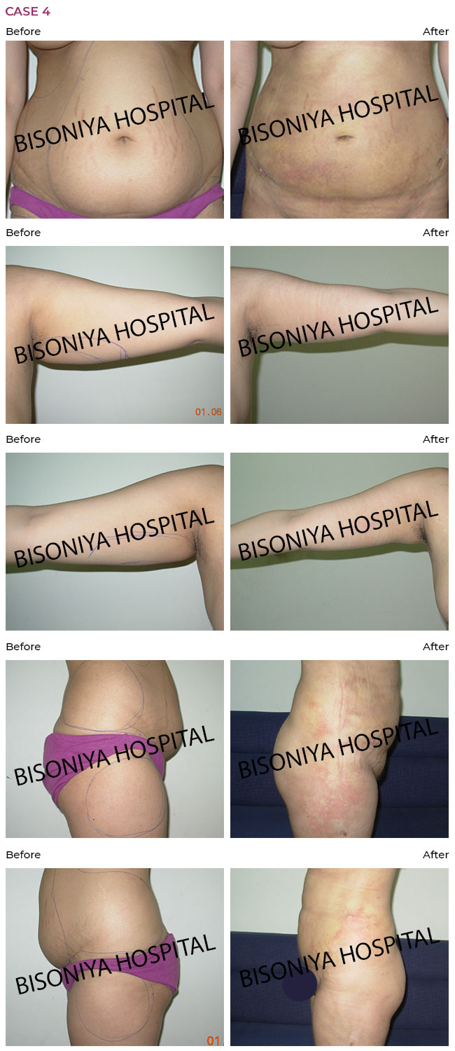Liposuction - Case6