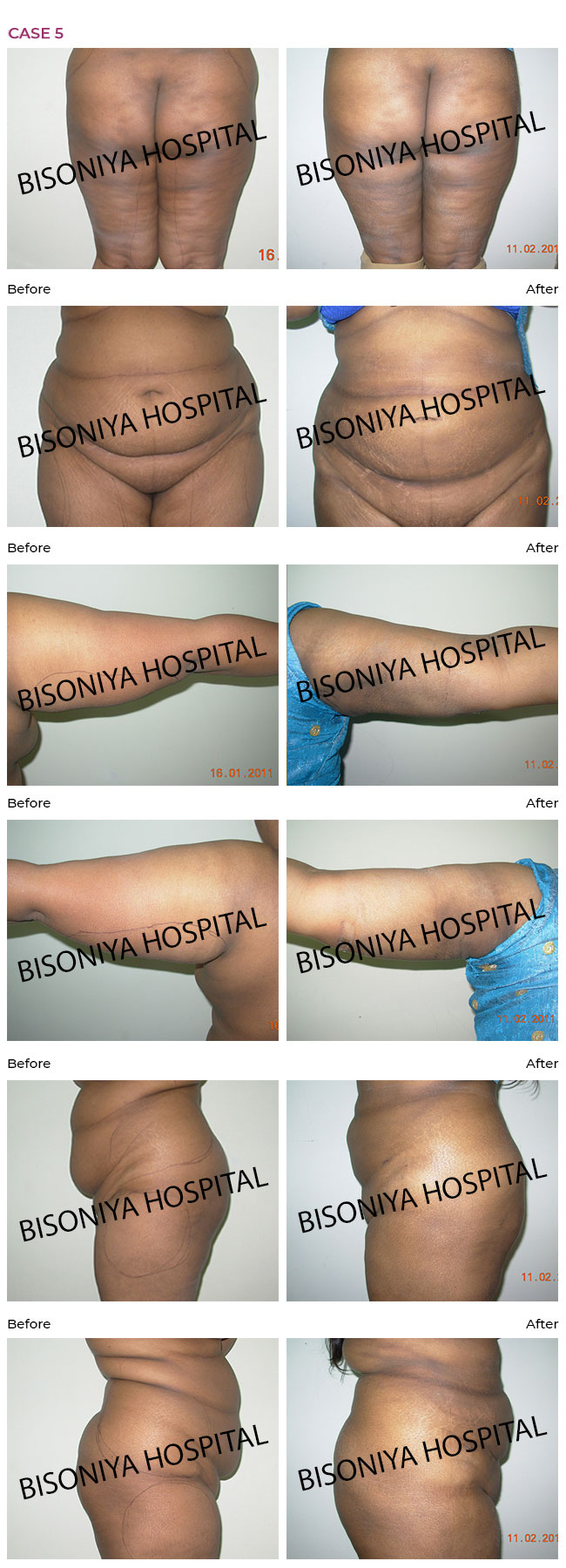 Liposuction - Case7