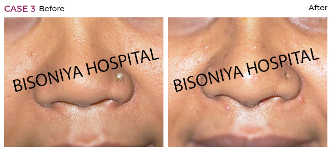 Rhinoplasty - Case3
