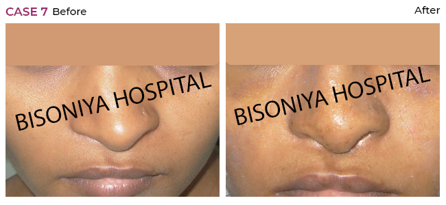 Rhinoplasty - Case7